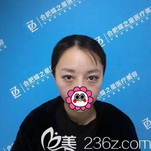 合肥蝶之星医疗美容门诊部李树平术前照片1