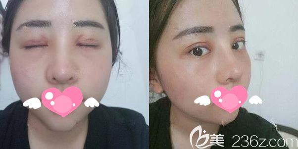 术后一周拆线膨体隆鼻+双眼皮+开内眼角恢复