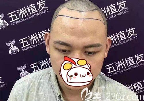 武汉五洲莱美整形美容医院丁浩术前照片1