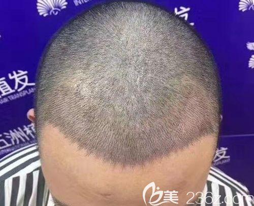 武汉五洲莱美整形美容医院丁浩术后照片1