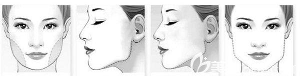 下颌骨宽大的脸型