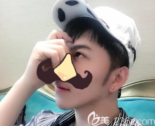 北京碧莲盛医疗美容门诊部袁国安术后照片1
