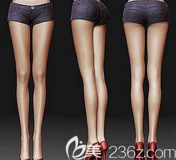 做大腿吸脂后可以改善腿型