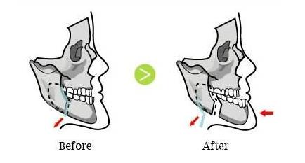 一线城市下颌角和颧骨单项手术价格在3.5-6万之间并且不包括全麻和面诊费