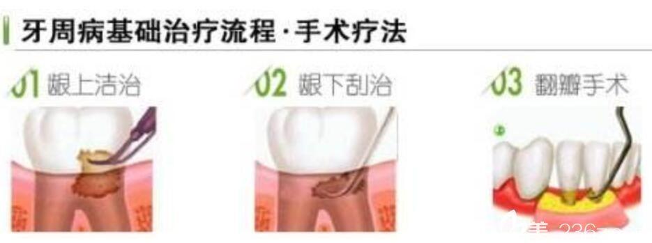 牙周炎的治疗方式