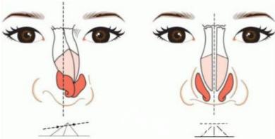 影响隆鼻价格的因素