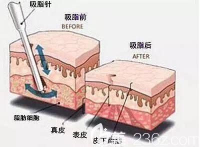 吸脂手术的原理图