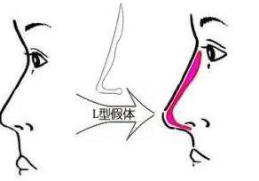价格便宜隆鼻手术谨慎选择