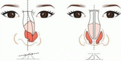 假体隆鼻容易出现的后遗症