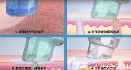 小气泡清洁皮肤的原来过程示意图