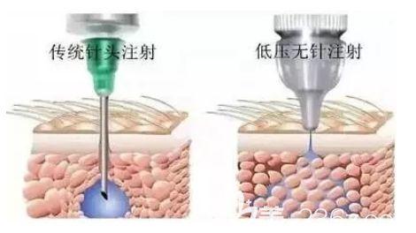 无针水光注射补水的示意图