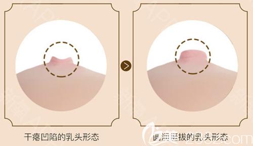 乳头凹陷很影响女性哺乳