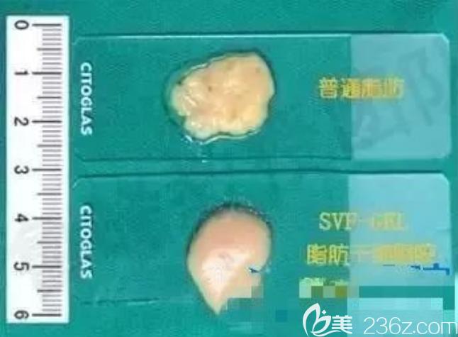 坏死和健康的脂肪细胞对比图