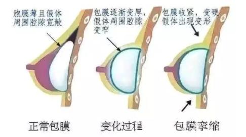 假体丰胸后出现包膜挛缩的变化过程