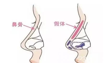 鼻骨和假体放置的位置对比