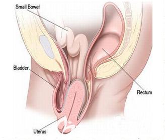子宫下垂矫正手术