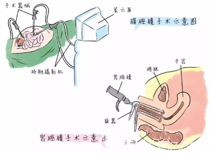 通过子宫下垂矫正能够改善漏尿现象吗?