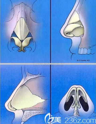 鼻子整体的内部构造图