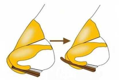 鼻头的内部构造