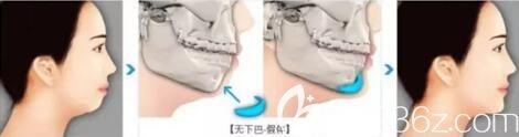 假体垫下巴改善前后对比效果图