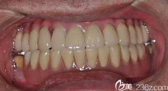 种植牙5年后的感受