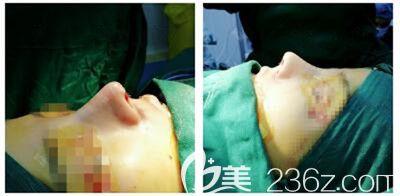 驼峰鼻术后即刻