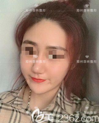 郑州菲林医疗美容门诊部谭拯术后照片1