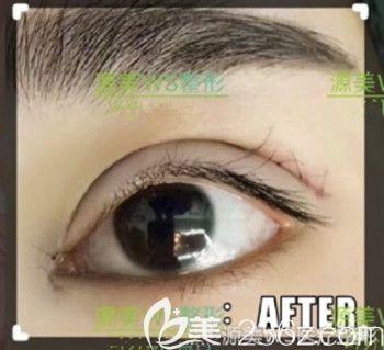 割双眼皮的时候是否需要开内眼角