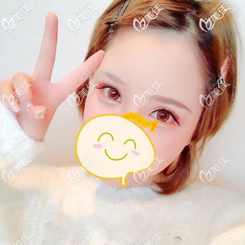 广州碧莲盛植发黄广程术前照片1