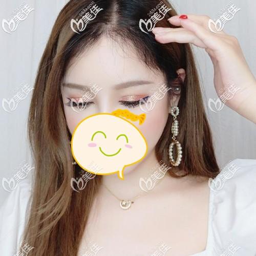 广州碧莲盛植发黄广程术后照片1