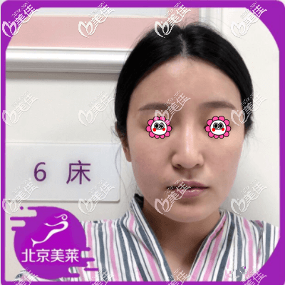 北京美莱医疗美容医院刘晓荣术前照片1