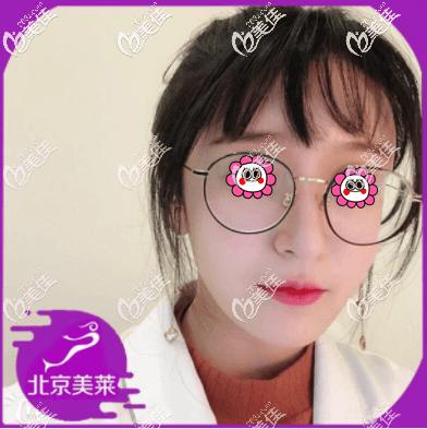 北京美莱医疗美容医院刘晓荣术后照片1