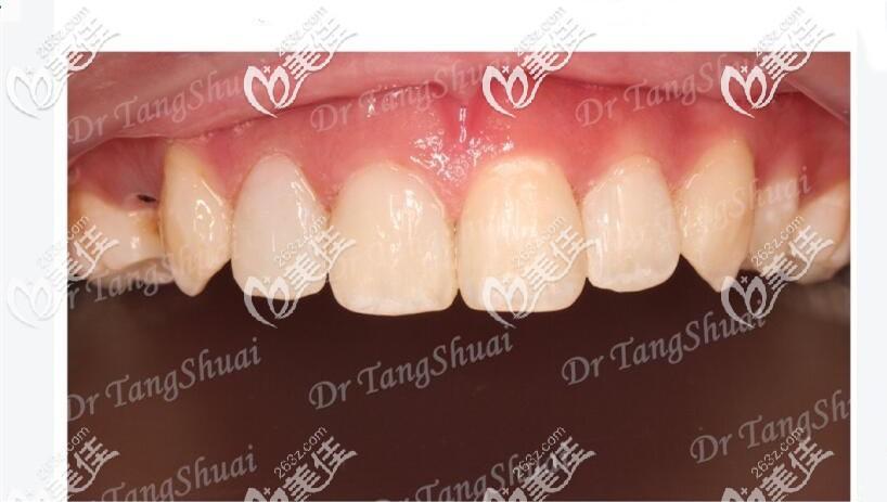 前牙美学树脂修复案例