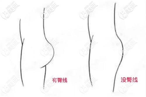 大腿吸脂手术非常有必要做提臀线