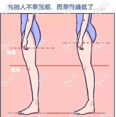 提臀线的目的是可以视觉造成腿长