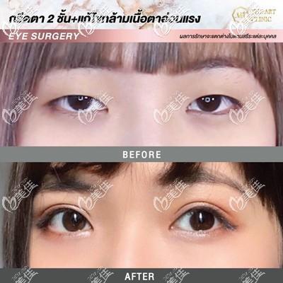泰国割双眼皮哪家医院好?泰国艺术整形医院双眼皮真人案例图