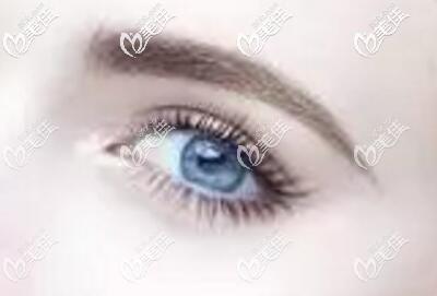 越来越多的人通过做双眼皮术改善单眼皮