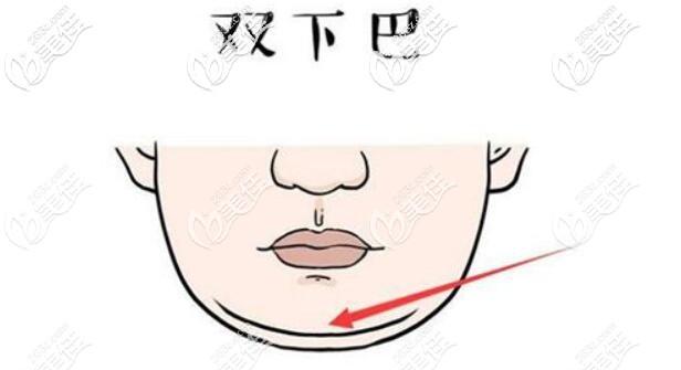 双下巴的形成原因介绍