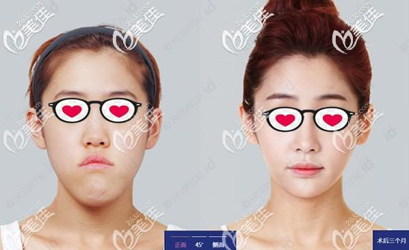 正颌手术后脸型改变图:是双鄂手术改变了我面部不对称和凸嘴的症状!