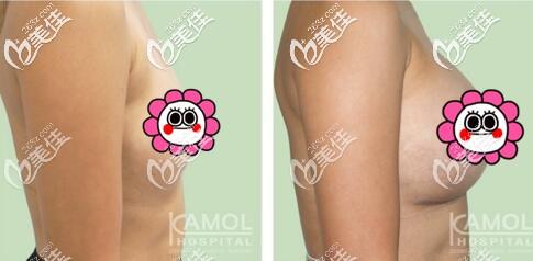 泰国KAMOL咖蒙医院假体隆胸真人案例
