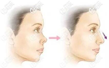 鼻假体取出后鼻子慢慢恢复到正常状态