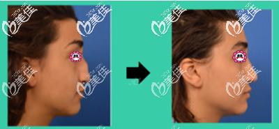 泰国鼻整形哪家医院好?泰国圣卡洛医疗中心鼻整形真人案例了解