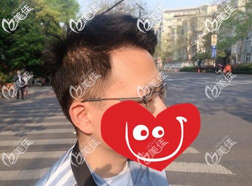 我多年雄脱造成额角光秃、头顶大面积稀疏,经BHT2.0大面积植发+稀疏加密后变这样...