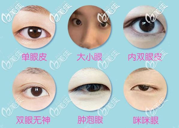 韩美无痕双眼皮能解决哪些眼部问题