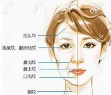 面部很容易出现的各种皱纹