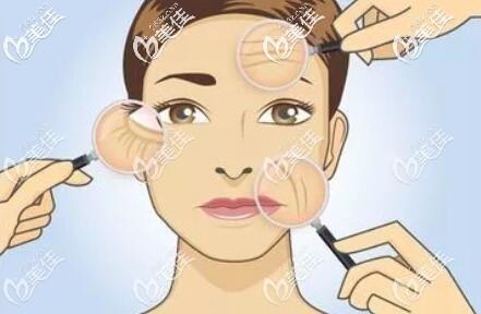 面部很容易发生衰老的位置