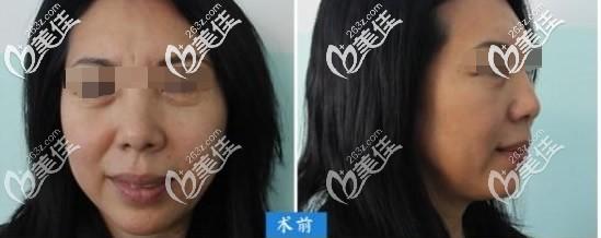 眼袋加中面部提升前的照片