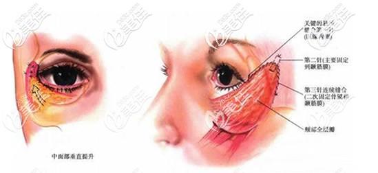 眼袋切口中面部提升术原理