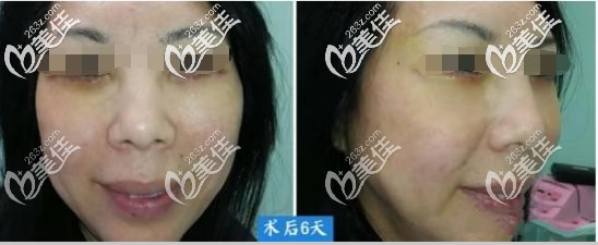 眼袋切口中面部提升案例图