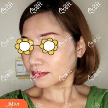 长沙华韩华美医疗美容医院潘艳妮术后照片1